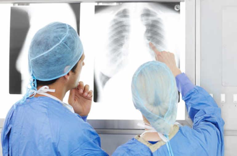 De tous les cancers, celui du poumon est le plus mortel ...