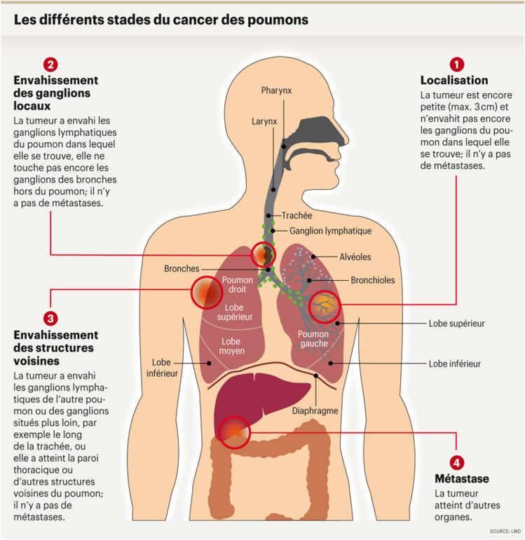 Les points pour cesser de fumer