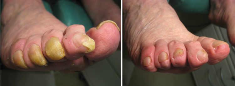 Le microorganisme végétal sur les pieds du moyen