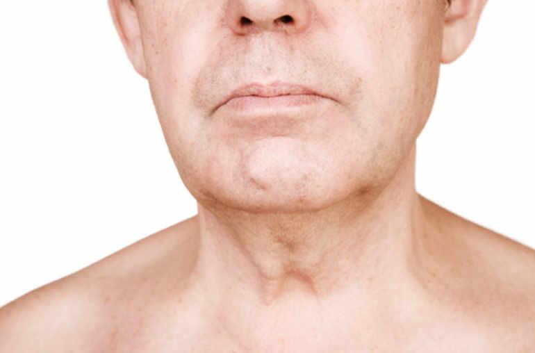 Papillomavirus de la gorge - Cancers ORL : préventions et traitements (Toulouse) anemia y leucemia
