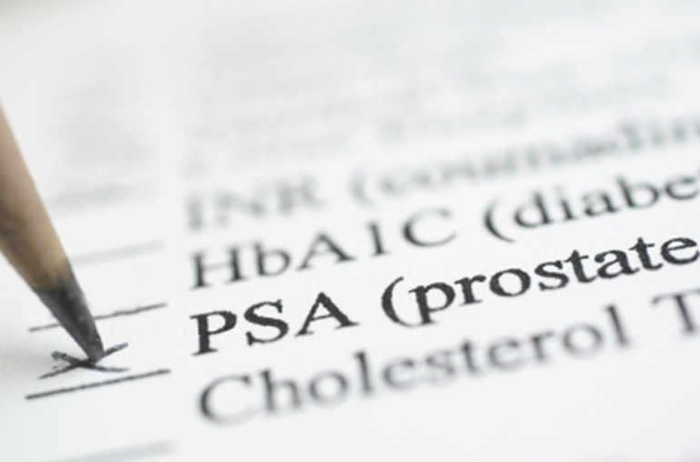 Cancer de la prostate et dosage du PSA: qui et à quel âge
