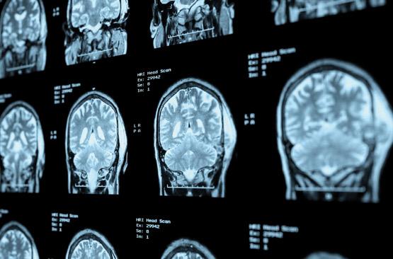 cancer maligne du cerveau paraziți mortali ai creierului
