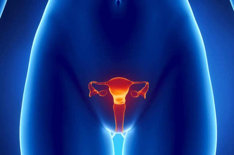 cancer de l ovaire carcinome ovarien planete sante. Black Bedroom Furniture Sets. Home Design Ideas