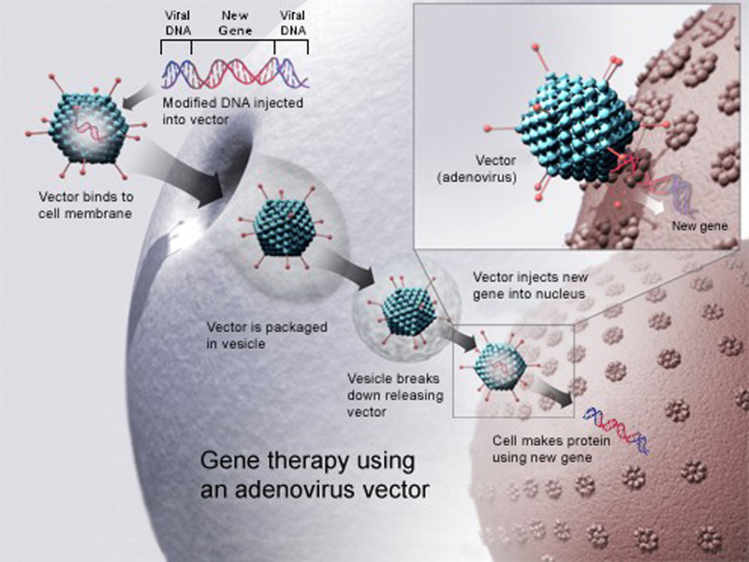 Thérapie génique utilisant un adenovirus – Source: National Institutes of Health.