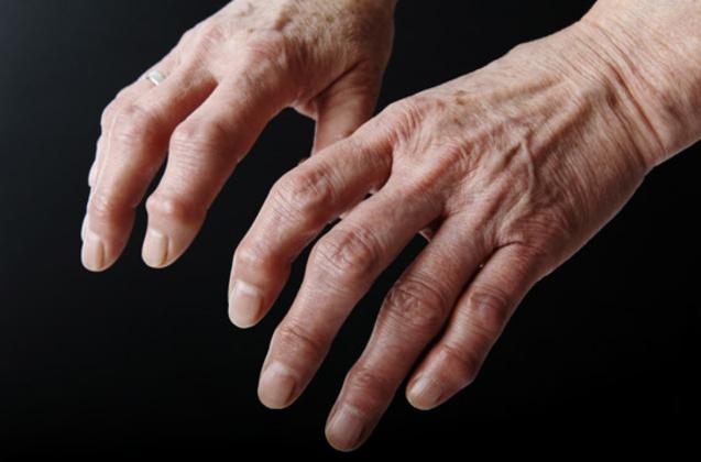 Le masseur pour le traitement cervical osteokhondroza