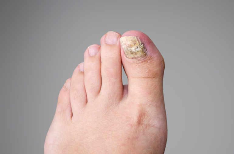 les champignons des pieds