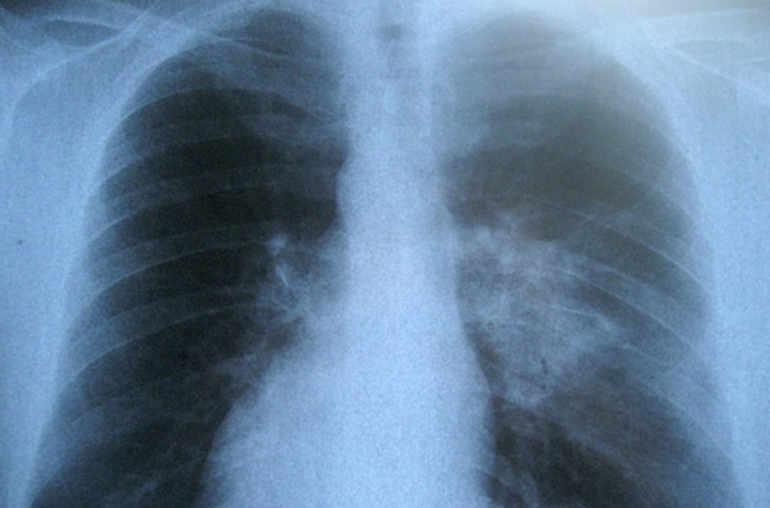 poumons qui síntomas brutales de diabetes