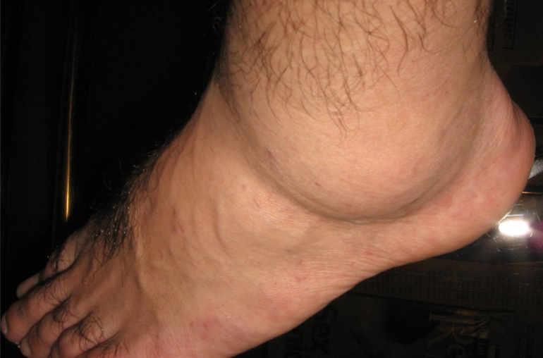 veine gonflée bras gauche