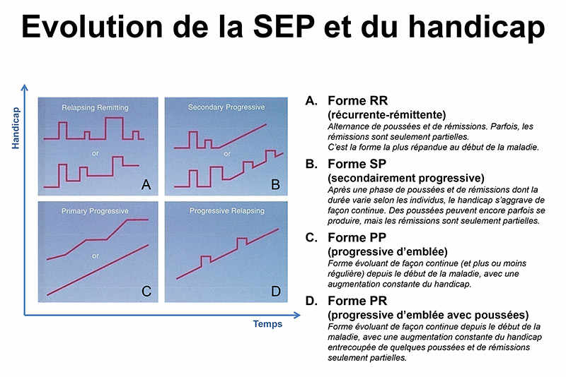 Evolution de la SEP et du handicap
