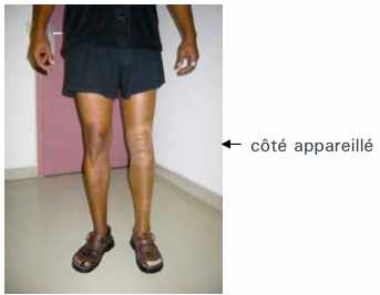 Les blessures que traiter les veines sur les pieds