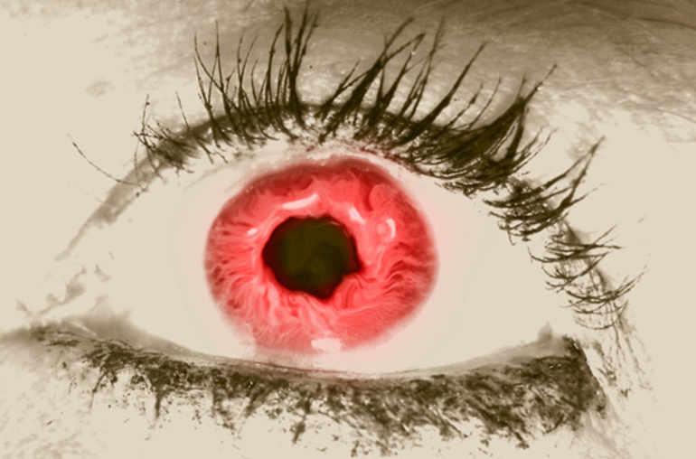 J Ai L œil Rouge Mal à L œil Planete Sante
