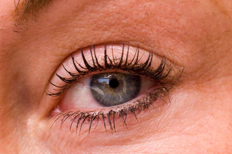 Dermatite yeux traitement, Hpv condylome traitement