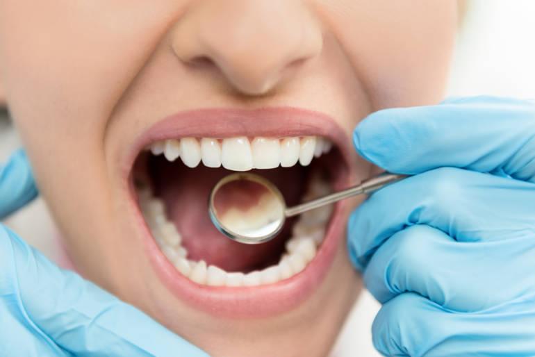 abcès dentaire et mal de gorge
