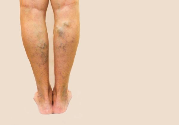 durează piciorul varicose wall cum să tratați operațiunea varicoză când faceți