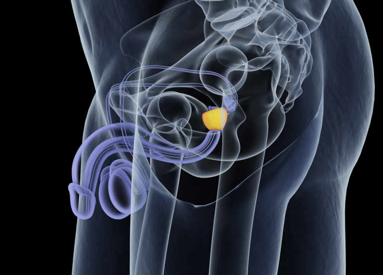 radiotherapie_cancer_prostate