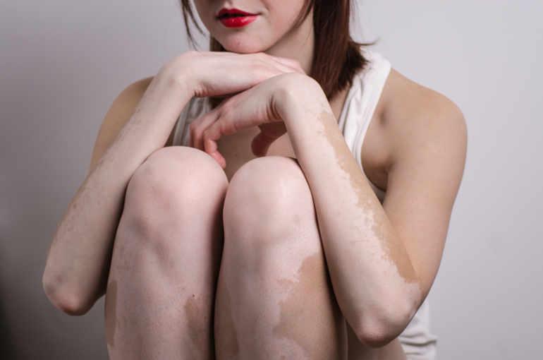 photos lifting seins sans prothese mon mari ne veut pas avoir des relations sexuelles