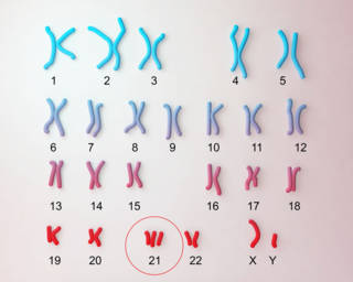 down-syndrome-karyotype