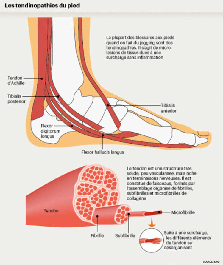 Les tendinopathies du pied