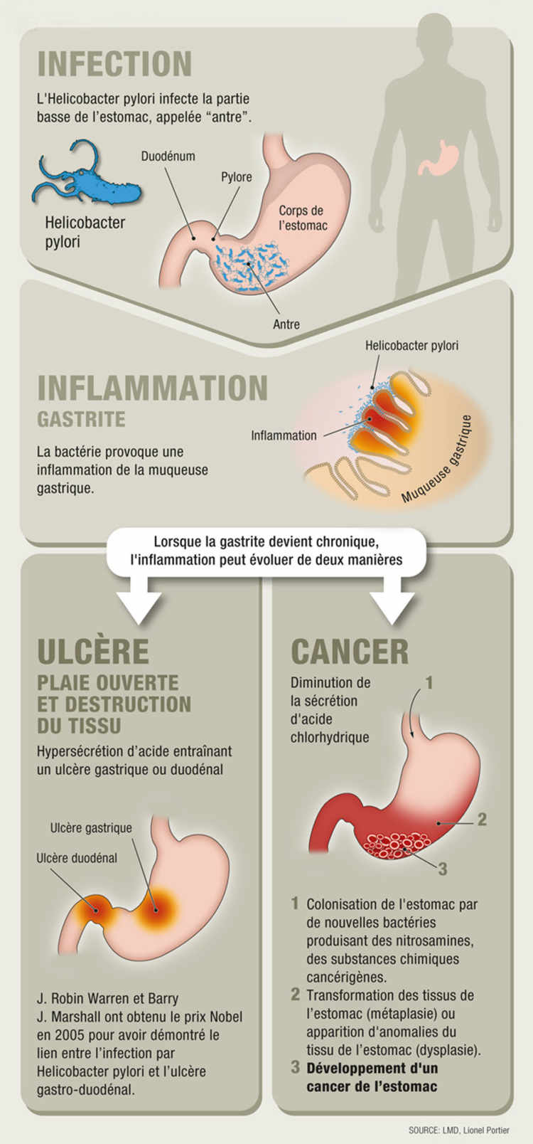 cancer gastrique metastatic)