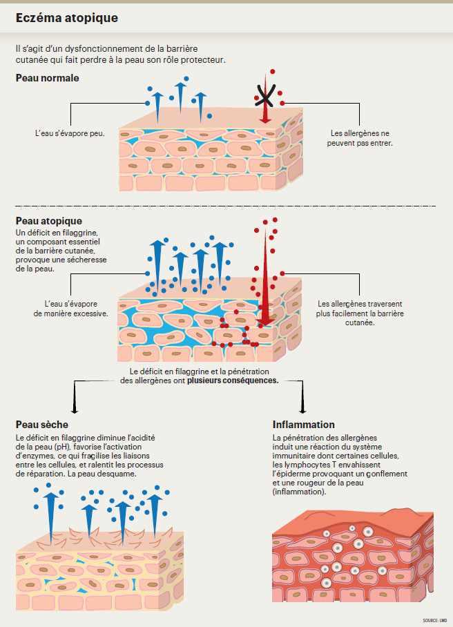 Le dupilumab, remède miracle pour la dermatite atopique