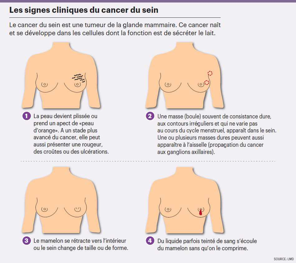 infog_cancer_sein_union