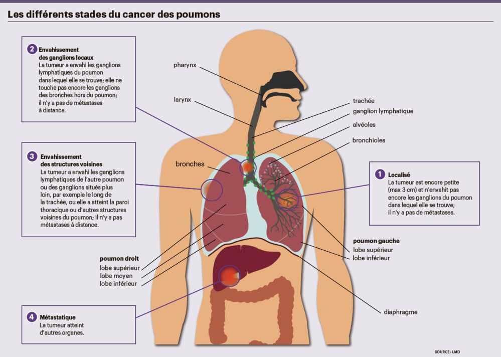 l immunoth rapie une arme contre le cancer du poumon planete sante. Black Bedroom Furniture Sets. Home Design Ideas