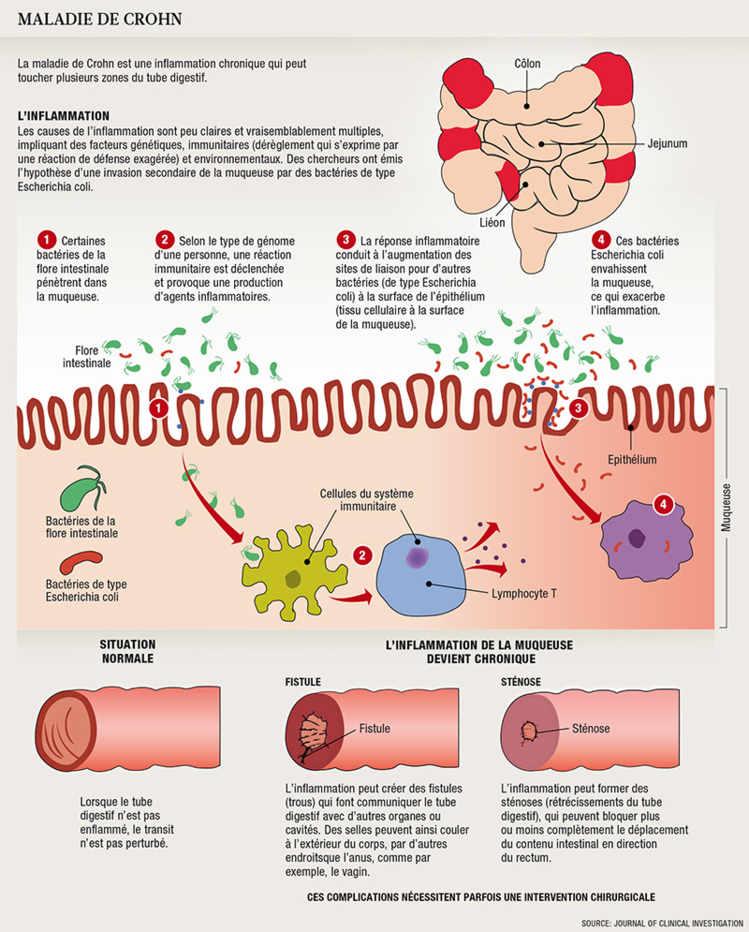 On peut traiter le psoriasis par la soude