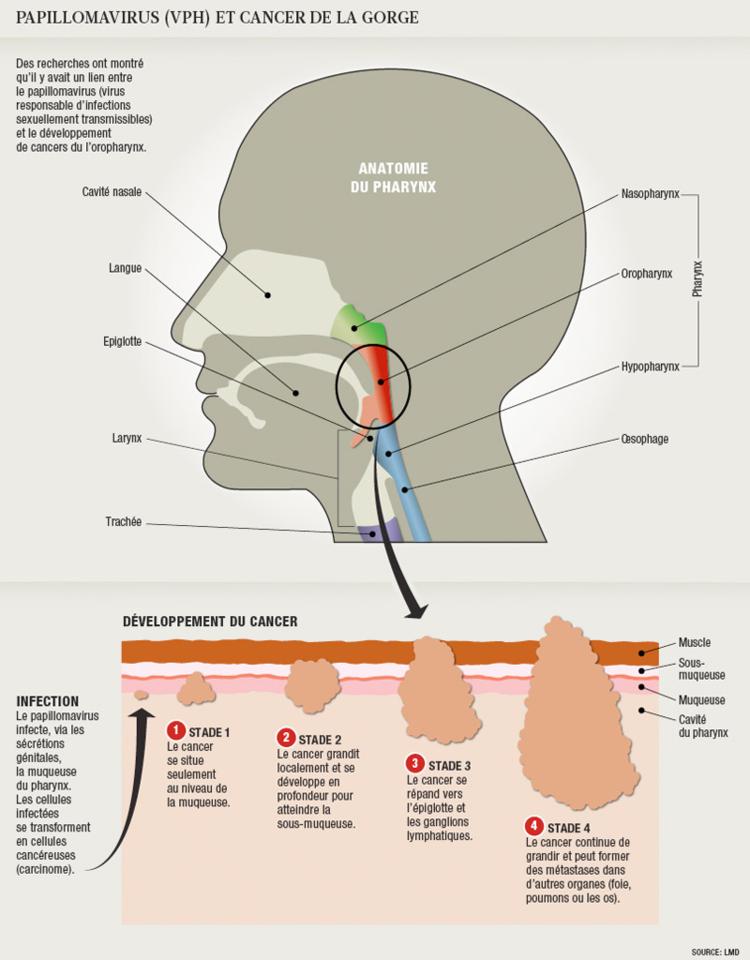 Cancer du sexe oral