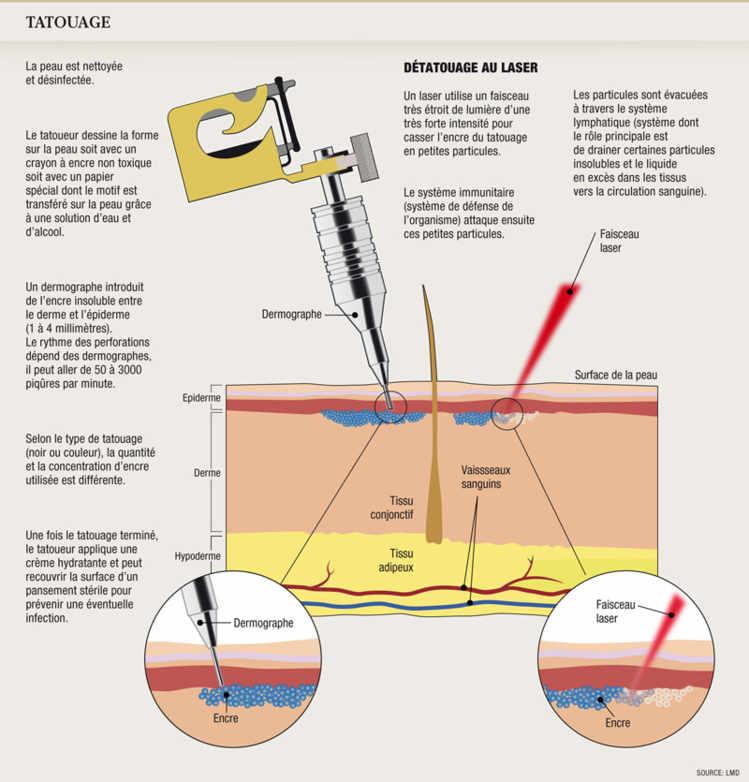 Les aspects de la maladie de la pigmentation de la peau