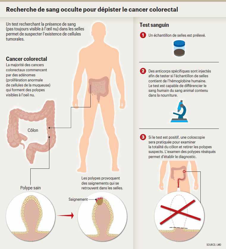 cancer colorectal homme)