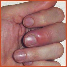 Mon enfant a un ongle incarn ou panaris planete sante - Comment couper les ongles d un lapin ...