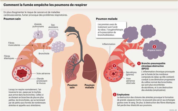 les poumons des fumeurs sont in gaux face la maladie planete sante. Black Bedroom Furniture Sets. Home Design Ideas