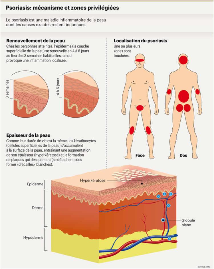 Les préparations avec le goudron du psoriasis
